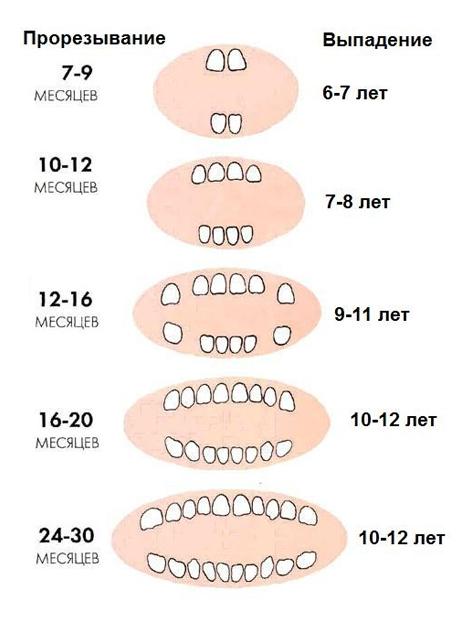 Зуб у ребенка прорезался над другим зубом
