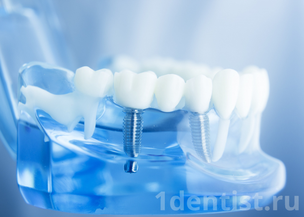 https://1dentist.ru/upload/iblock/6ff/6ff7bbf8c847c2f541721b73f6207d98.jpg
