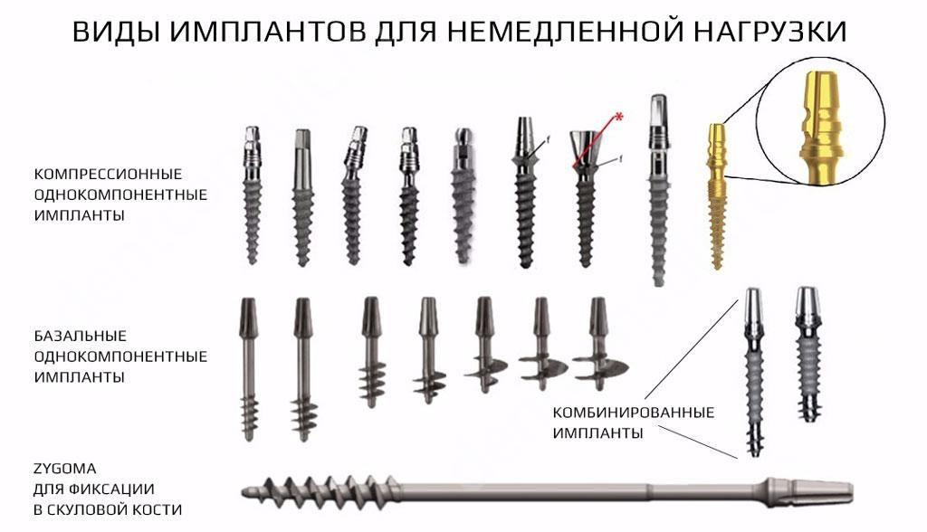 implanty-dlya-nemedlennoy-nagruzki.jpg